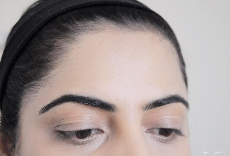 oily-eyelids